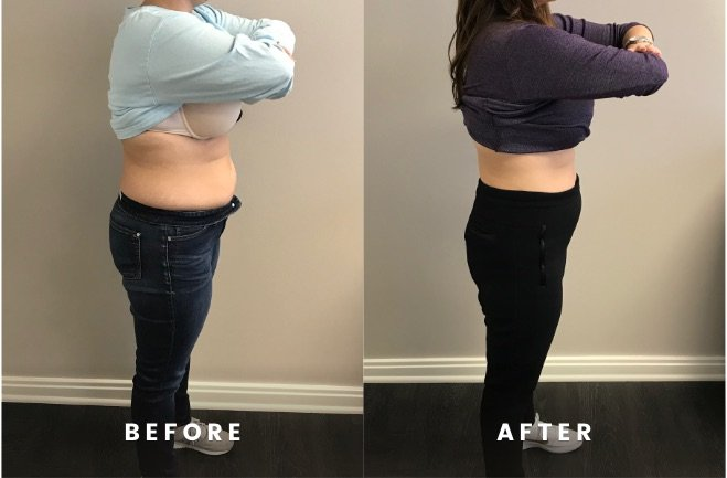 HCG injections can cause faster and more effective weight loss in 8 weeks or less?